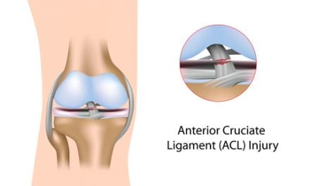 Study Identifies Genetic Differences in Female Athletes with ACL Injuries