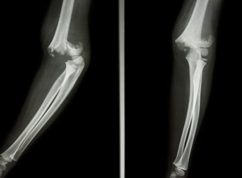 Data: Obese Children More Likely to Have Complex Elbow Fractures