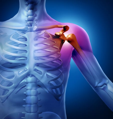 PT Student Develops Intervention to Reduce Work-Related Shoulder Injuries