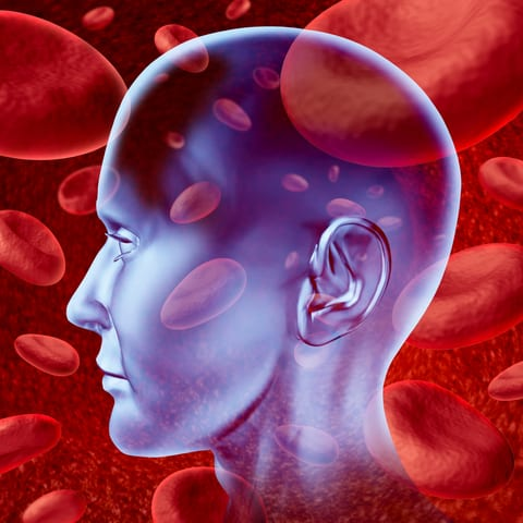 Impaired Blood-Brain Barrier After Stroke May Lead to Chronic Deficits