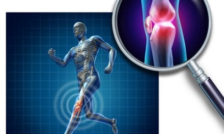 Risk Factor Education, Identification May Aid in ACL Reinjury Prevention