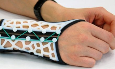 New Software Concept Enables Design of Customized 3D Wrist Splints for RA Patients