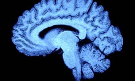 Neuroimaging Technique Aids in Diagnosing Concussion-Related Brain Disease
