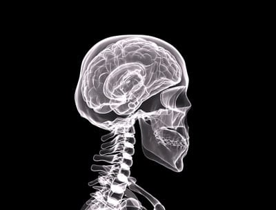 Researchers Report Blows to the Head May Result in Immune System Attack on the Brain