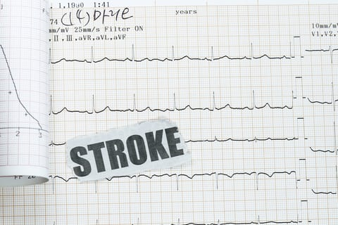Stroke Patients At High Risk for Repeat Event, Study Says