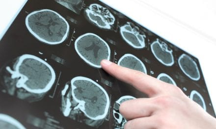 CT Scan of Brain Post-Mild Stroke May Help Predict Future Risk