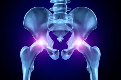 Study Links Hot Flashes, Night Sweats to Hip Fracture Risk