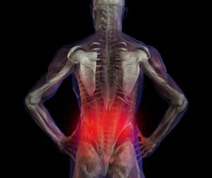 NIH Task Force Highlights Standards for Low Back Pain Research