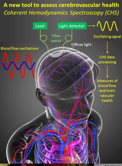 Tech Aims to Help ID and Monitor Brain Damage Post-Stroke, Traumatic Injury, or Vascular Dementia