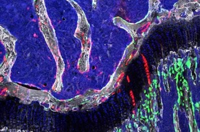 Stem Cells' Ability to Regenerate Bone, Cartilage in Mice May Offer Insight into OA, Osteoporosis