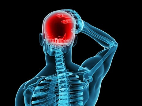 Researchers Investigate Potential Link Between Migraines and Stroke Risk