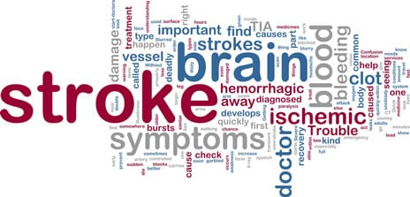 """Stroke Damage to """"Cables"""" In the Brain May Play Key Role in Impairments"""
