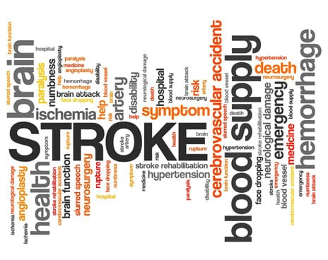Study: Blend of Mental Practice and PT Effective as Stroke Treatment