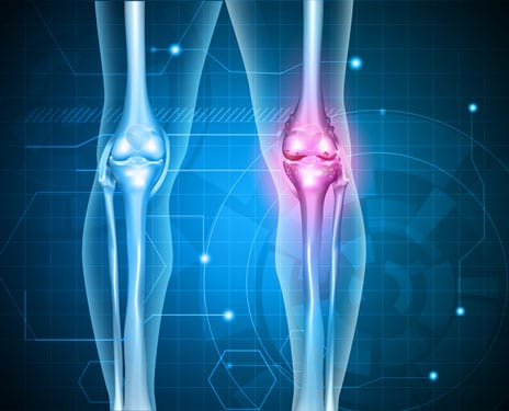 OrthoTrophix Completes Enrollment and Dosing in Its Phase 2 Knee Osteoarthritis Drug Study