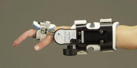 Static Progressive Splint Combines Static Stretching, Stress Relaxation