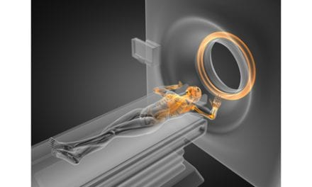 3D Imaging May Be Useful for Helping to Determine Stroke Risk Among Diabetics