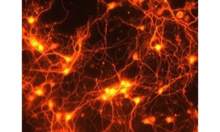 Component for Brain Repair After Stroke ID'd