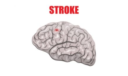 The Public is Alarmingly Uninformed About Stroke, According to National Stroke Association