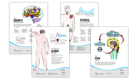 Poster Set from OPTP Focuses on Pain Education