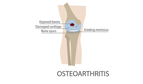 HSS Launches Study of Stem Cell Treatment for Knee Osteoarthritis