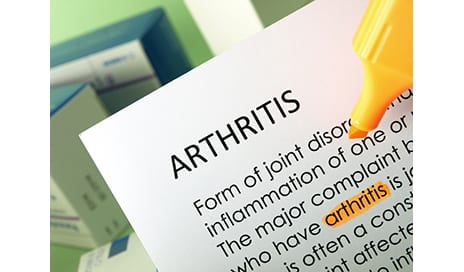 Study to Examine Connection Between ACL Surgery and the Development of Osteoarthritis