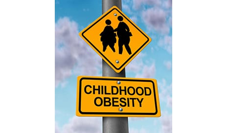 Obesity During Adolescence May Affect Bone Health