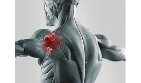 FDA-Approved Trial of Stem Cells to Treat Shoulder Injuries Seeking Participants