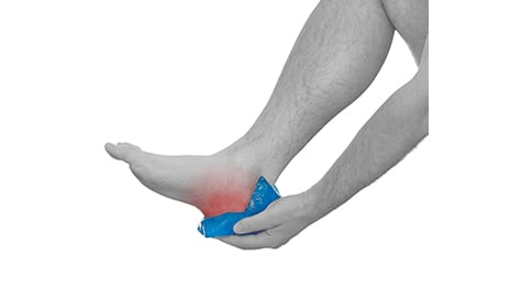 Study Examines the Use of Umbilical Cord Tissue to Help Treat Plantar Fasciitis
