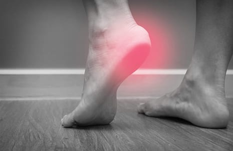RT002 Demonstrates Impact on Plantar Fasciitis Pain, Per Trial Results