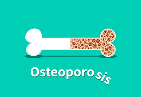 Osteoporosis Affects Kids, Too, But Turning Off Bone Receptor Protein Could Help