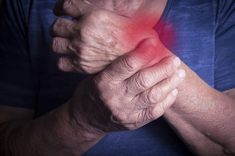 Surprising Arthritis Trends Emerge from NHANES Data Analysis