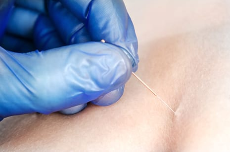 Who Will Win? PT vs. Acupuncture in Dry Needling Showdown