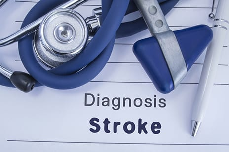 Docs Deliver Stroke Treatment in Less Than 17 Minutes with New Procedure