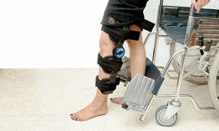 Postsurgery Movement Determines Post-ACL Osteoarthritis Odds, Study Suggests