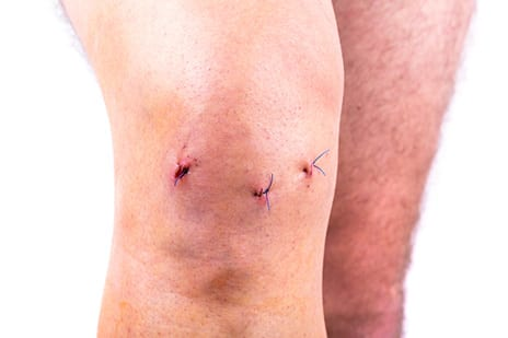 Fewer U.S. Adults Getting Unnecessary Knee Surgery