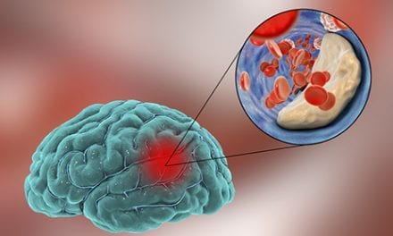 Presence of PATG Gene May Mean Worse Ischemic Stroke Recovery