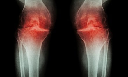 Combination Approach May More Effectively Preserve Osteoarthritis Cartilage