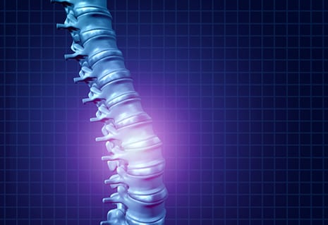 Animal Study Demonstrates Feasibility of Treating Spinal Pain with Tissue Engineered Discs