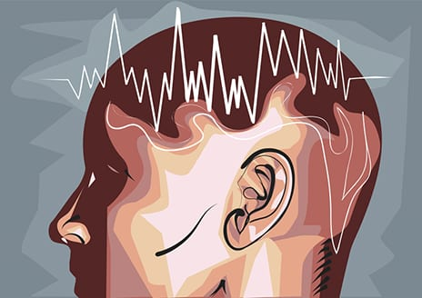 EEG May ID Patients with Severe TBI and Related CMD