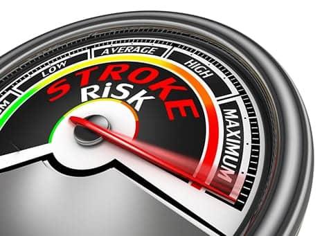 """""""Startling"""" Risk of Stroke Revealed in Study"""