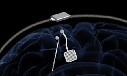 Wireless Pacemaker Aims to Fine-Tune Neuro Treatment