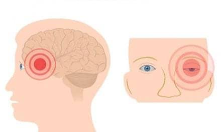 gammaCore Cluster Headache Device Receives FDA Nod