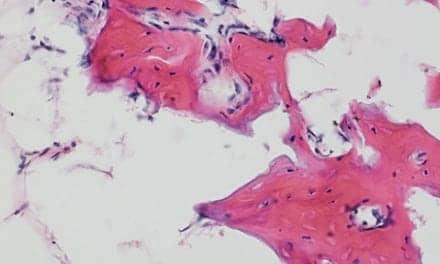 Researchers Define Certain Stem Cells' Roles in Bone Repair