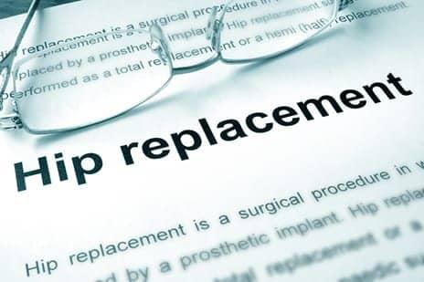 Skip the Postsurgery Hip Precautions, Hospital for Special Surgery Doc Advises