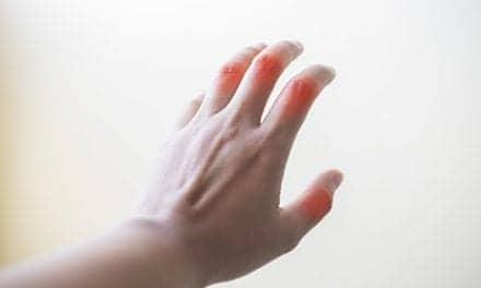 Rheumatoid Arthritis Trigger: Macrophage Death? Researchers Say Yes