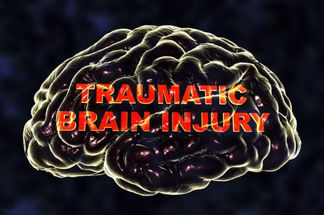 Even Mild Brain Injuries Tied to Lasting Functional Deficits