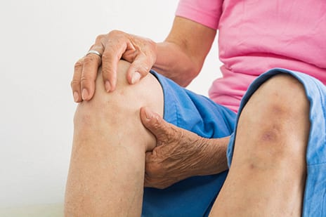 Patellofemoral Grind Suggests Worsening Knee OA