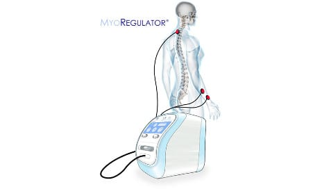 Trial Results of MyoRegulator Device for Spasticity Published