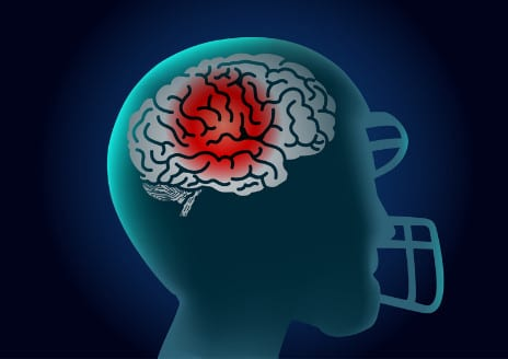 Even Routine Hits Playing Football Could Lead to Brain Injury