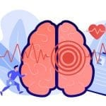 Gender Differences Evident in Stroke Treatment and Outcome